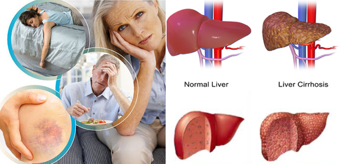 Cirrhosis is a condition where after a time with chronic liver disease the liver begins to deteriorate In such a case fibrous scar tissue replaces the normal