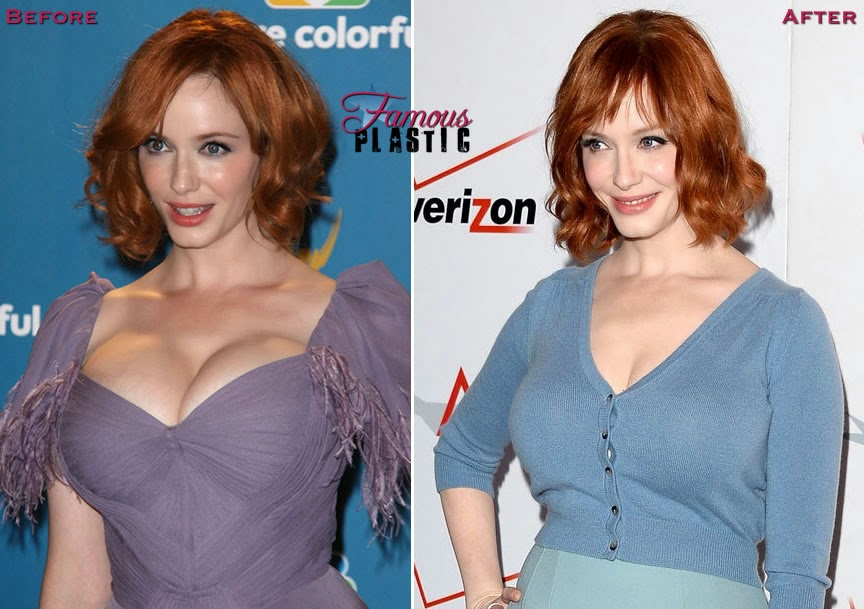 9aea25fd86f54 Did Christina Hendricks get Plastic Surgery Breast Implants Before ...