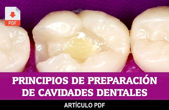 PDF: Revisión de los principios de preparación de cavidades. Extensión por prevención o prevención de la extensión