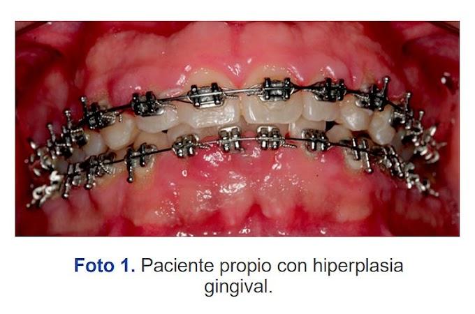 PDF: Hiperplasia gingival inducido por biofilm de placa bacteriana en pacientes con tratamiento ortodóntico