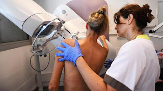 Penderita Pasien Kanker Payudara Tertipu Pengobatan Herbal