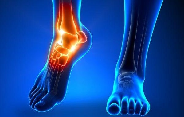 ankle replacement surgery information