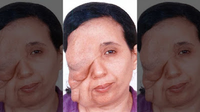 Moroccan woman with facial tumor