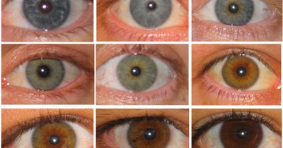 Color Of Eyes May Affect Risk Of Skin Conditions Like