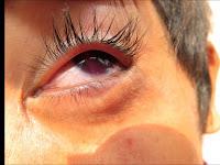 Resiko yang dapat timbul dari penyakit hifema