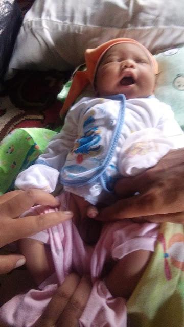 Bayi Lahir Dalam Kondisi Alat Kelamin Tersunat