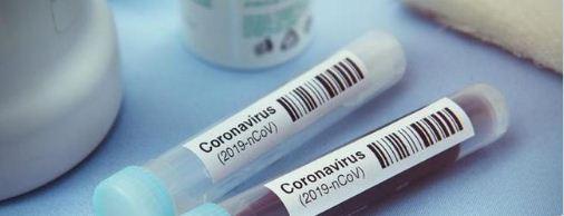 Daftar Istilah Terkait Virus Corona