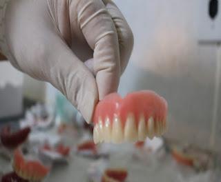 Serviço inédito de protese dentaria resgata o sorriso das pessoas em Bom Jardim