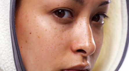 Cách chữa nám da hiệu quả nhất cho chị em phụ nữ