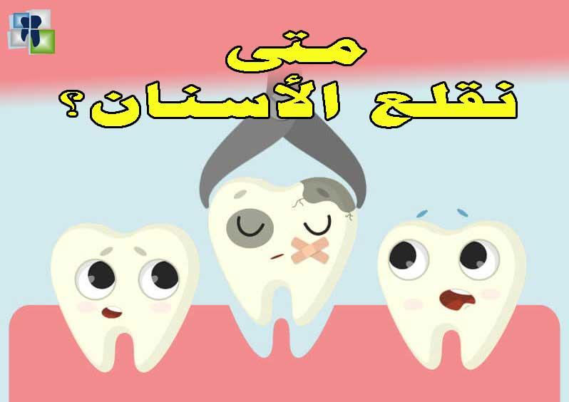 استطبابات قلع الأسنان ومضادات الإستطباب