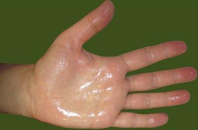 Penyebab Telapak Tangan Sering Berkeringat