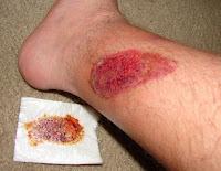 obat tradisional luka bernanah dan berair yang berkhasiat