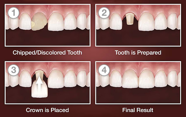 crown for broken and discolored tooth
