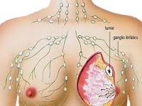 Obat Alternatif Kanker Payudara Stadium 4