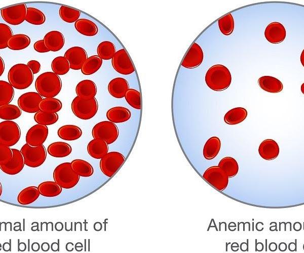 Generasi Bebas dari Anemia Defisiensi Zat Besi (ADB)