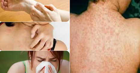 The Best Ways To Remove Alergies On Your Body For LifeTime ...!!
