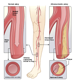 Penyakit Oklusif Arterial