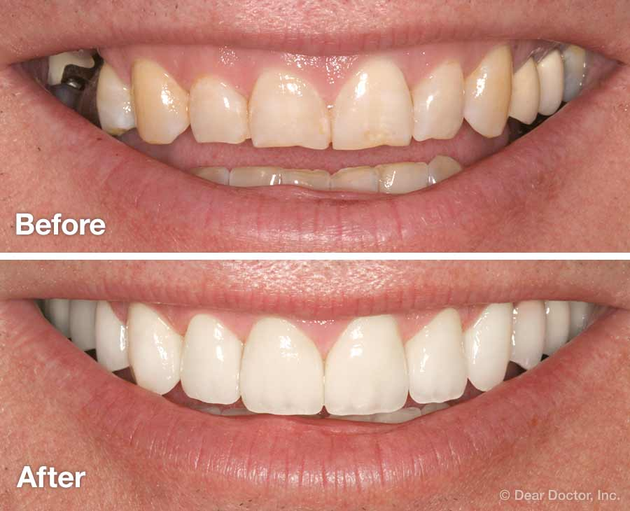 How to make your smile beautiful Improve Your Smile: Cosmetic Dentistry?