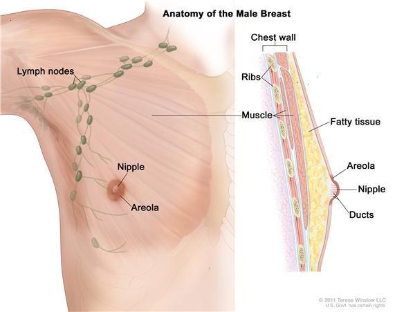 cancer du sein homme