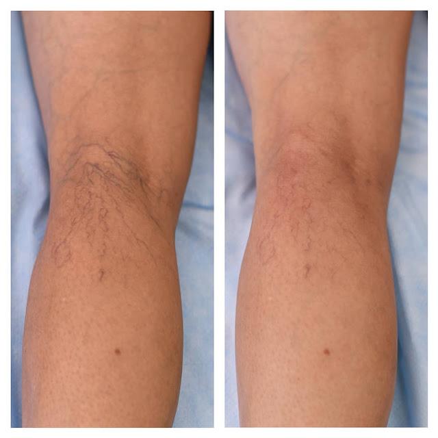DIY Baume hydratant pour soulager les jambes fatiguées avec les veines variqueuses