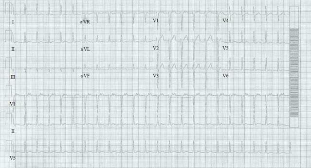ECG of AV Nodal Reentrant Tachycardia