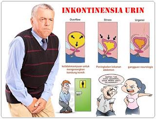 makalah askep pada inkontinensia urine