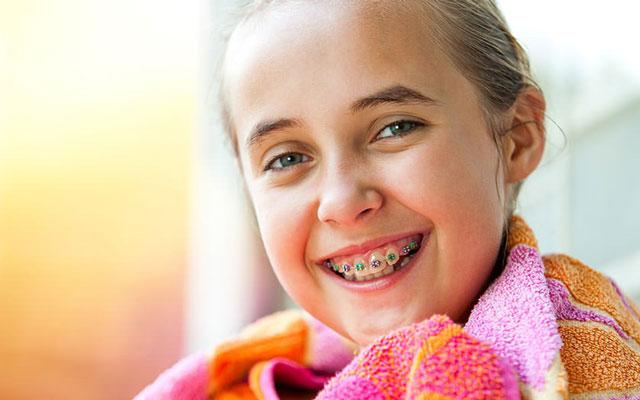 العمر المناسب لتقويم الأسنان والمعالجة التقويمية المبكرة