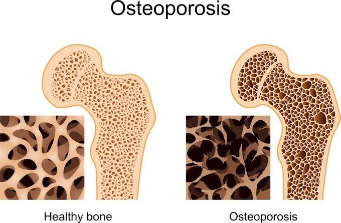 Osteoporosis Bukanlah Penyakit Kekurangan Kalsium!