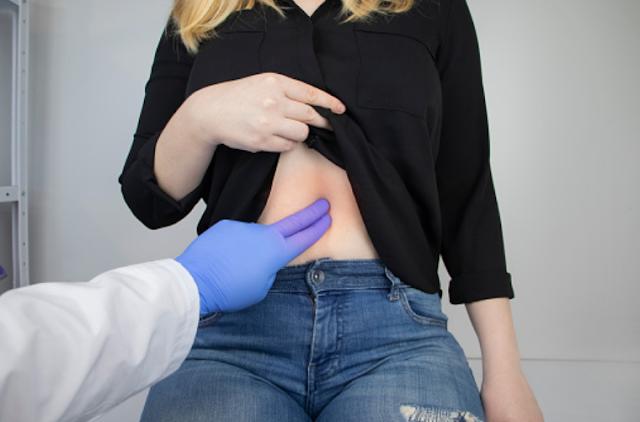 Penyakit Cholecystitis Pada Tubuh Manusia Pengertian Cholecystitis Kantong empedu adalah kantong kecil yang berada di bawah hati. Ia menyimpan cairan empedu yang dibuat hati dan menyemburkannya ke dalam usus ketika sedang makan. Cairan empedu membantu pencernaan lemak pada makanan. Cholecystitis adalah peradangan kantong empedu. Sering kali disebut serangan kantong empedu. Cholecystitis biasanya disebabkan batu empedu yang terjebak dalam saluran yang mengambil cairan empedua dari kantong empedu menuju usus.  Tanda dan Gejala Cholecystitis Gejala yang paling umum adalah rasa nyeri dan kram di sisi kanan atas perut. Hal ini bisa memengaruhi bagian tubuh lainnya. Gejala lainnya yaitu : Nyeri di dada, punggung atas, atau bahu kanan. Nyeri ketika bernapas atau bergeraka atau ketika ditekan Bersendawa, mual, dan muntah, biasanya setelah makan makanan tinggi lemaka Suhu rendah Kuling menguning Mata terlihat putih Kulit gatal bisa terjadi jika saluran utama yang membawa empedu ke usus terhambat batu Kantong empedua yang terinfeksi bisa menyebabakan subuh badan tinggi dan menggigil  Penyebab Cholecystitis Cholecystitis biasanya disebabkan batu empedu (disebut cholelithia-sis) tapi bisa juga berhubungan dengan masalah empedu yang dibuat atau disimpan di dalam kantong empedua. Jenis lainnya ini disebut acalculous, yang artinya 'tanpa batu'. Penyebab lainnya adalah sickle cell disease, infeksi, dan diabetes. Jenis acalculous banyak ditemukan pada pria yang lebih tua, orang sakit, atau orang tua yang terbaring di tempat tibur.  Faktor Risiko Cholecystitis Faktor-faktor risiko cholecystitis mirip seperti batu empedu. Seperti usia, jenis kelamin perumpuan, kelompok etnis (seperti penduduk asli Amerika), obesitas, puasa, diet ketat, penurunan dan keniakan berat badan berlebihan, obat, dan kehamilan.   Nah itu dia bahasan dari penyakit cholecystitis pada tubuh manusia, melalui bahasan di atas bisa diketahui mengenai pengertian, tanda dan gejala, penyebab, dan faktor risiko dari peny