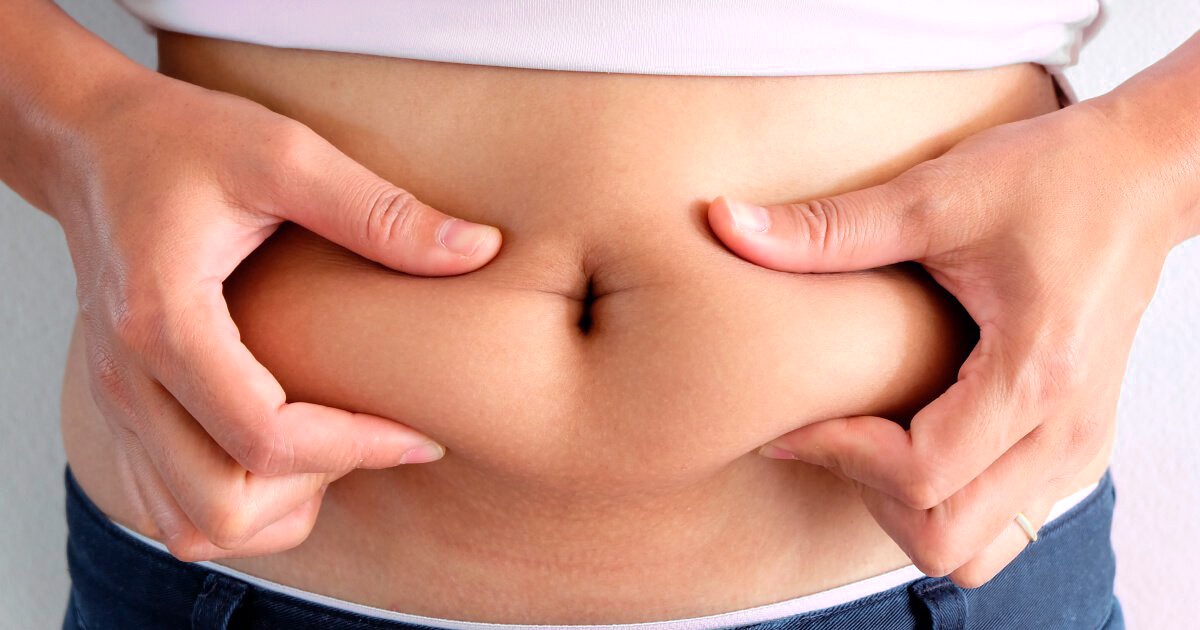 Does weight loss reduce appearance stretch marks image 4
