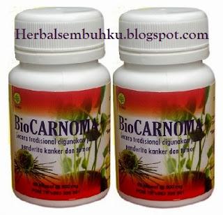 BIOCARNOMA Obat herbal kanker kista mioma Surabaya Sidoarjo Mojokerto Gresik Jombang Pare Kediri