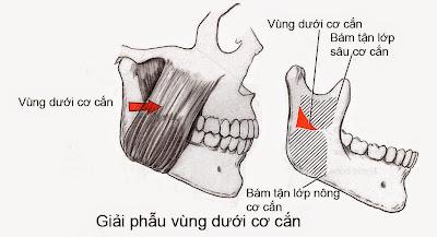Khoang liên kết vùng dưới cơ cắn