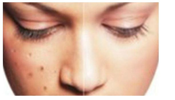 bintik hitam di muka,cara hilangkan bintik hitam di muka, langkah penjagaan muka