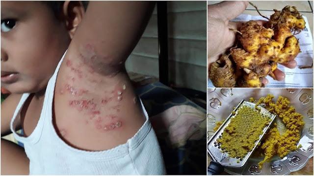 Cacar Api dan Herpes Sembuh Dalam 1 Malam Dengan Rimpang Bangle