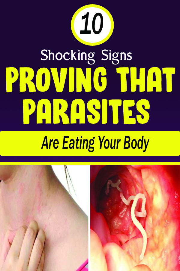 10 Shocking Signs Proving That Parasites Are Eating Your Body