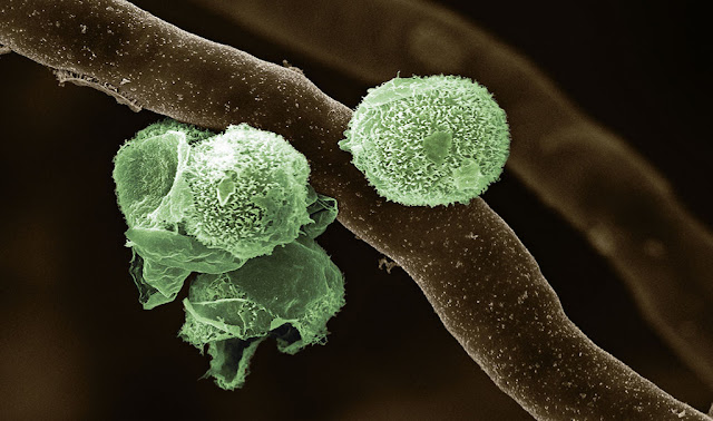 Algae living inside fungi: How land plants first evolved
