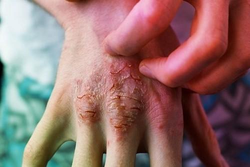 Como Ayudar a una Persona con Psoriasis