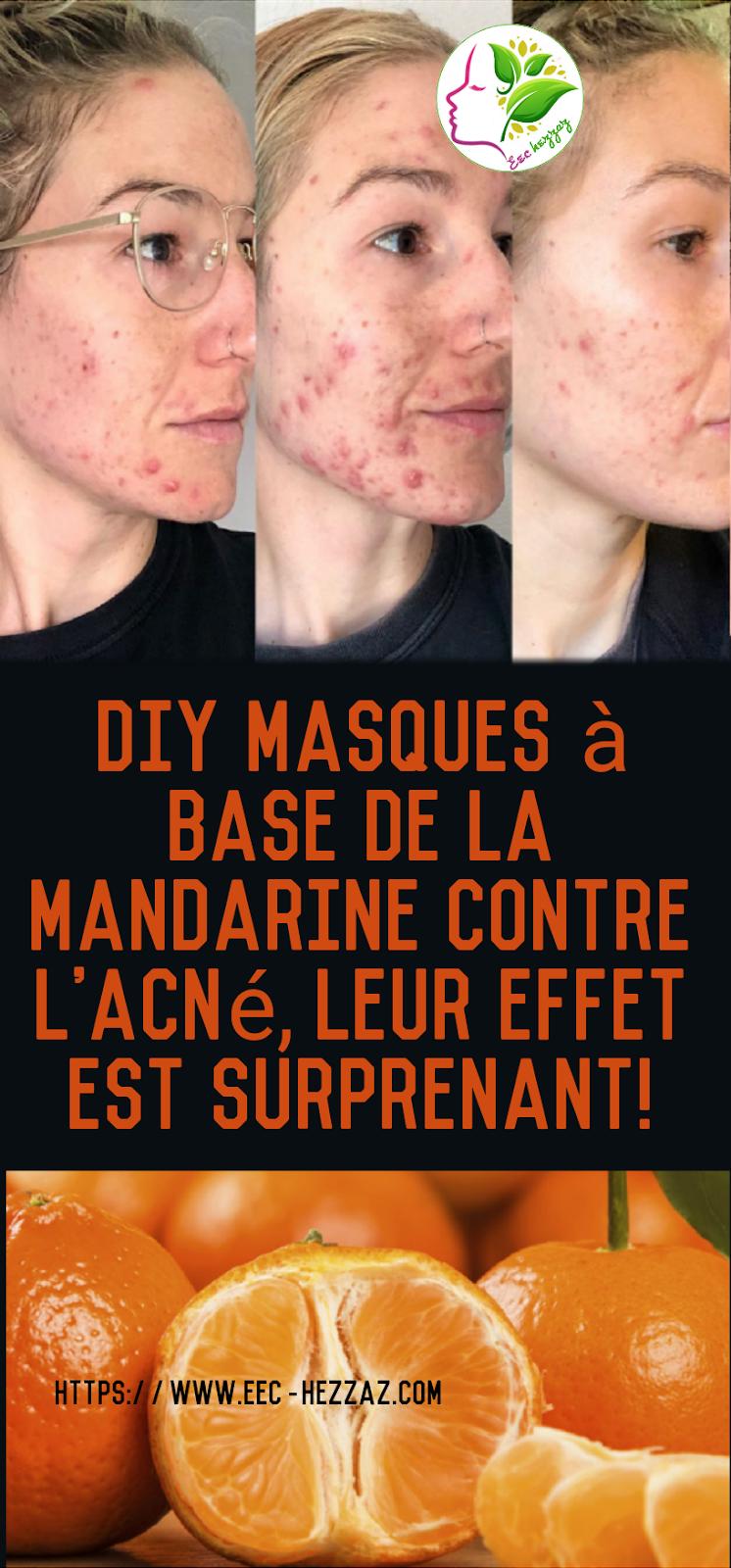 DIY masques à base de la mandarine contre l'acné, leur effet est surprenant!