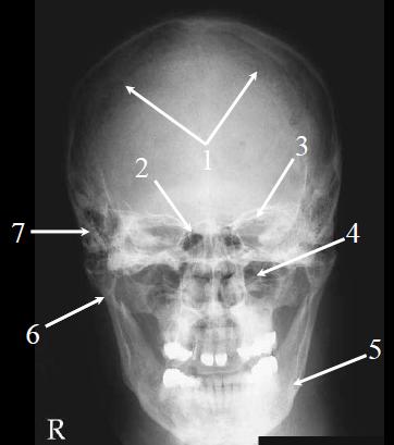 Medical Imaging Technology: Skull Radiography- Lateral and ... X Ray Skull 4 Views