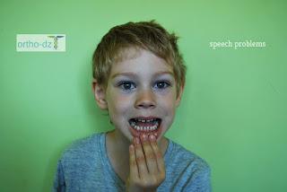 أسباب مشاكل النطق والكلام عند الأطفال