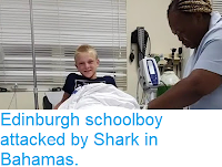 http://sciencythoughts.blogspot.com/2018/04/edinburgh-schoolboy-attacked-by-shark.html