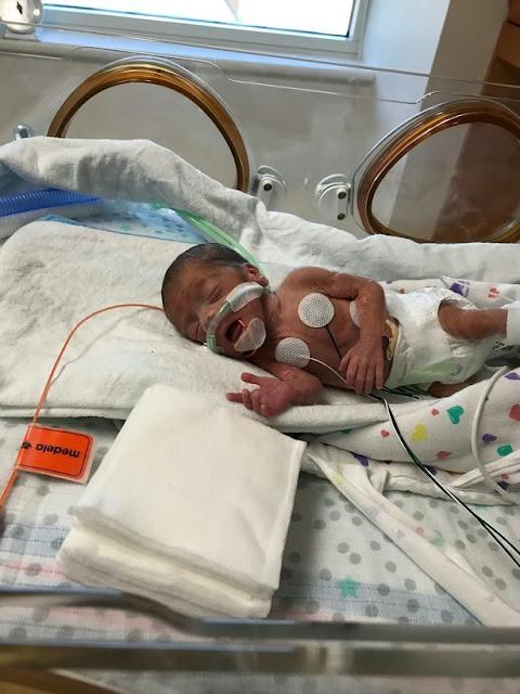 Keajaiban, Bayi Lahir Prematur dengan Berat 700gram Selamat Berkat Kantong Plastik