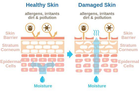 grafik tentang skin barrier
