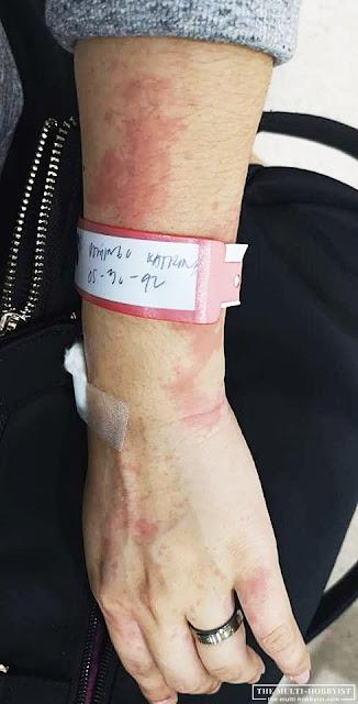 skin allergy test philippines, skin allergy test cost, prick test, patch test, skin prick test cost, skin prick test cost philippines