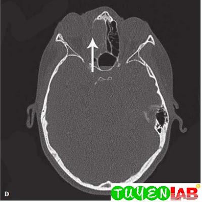 Same patient, CT scan