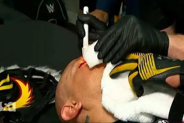حالة ري ميستيريو بعد الإصابة الخطيرة على مستوى عينه