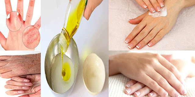 Best Home Remedy For Rough And Dry Hands Top 3