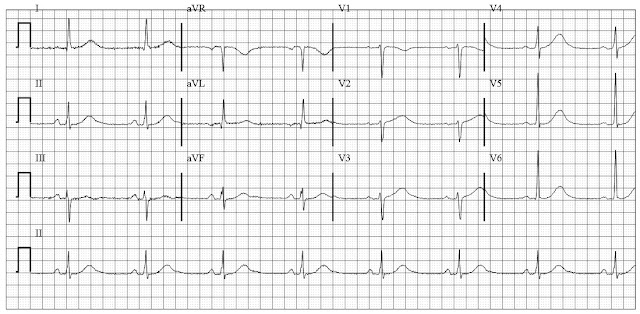 drug induced ekg changes
