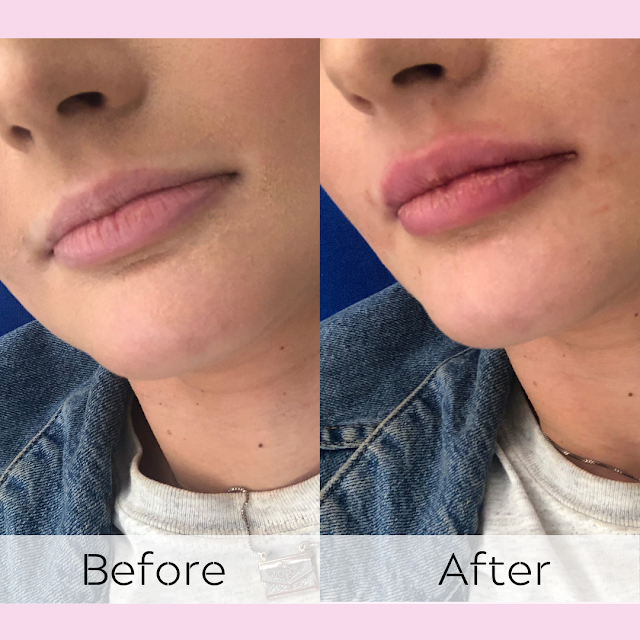 What's It Like Getting Lip Filler? | Subtle Lip Enhancements at White Swan Aesthetics* | Lovelaughslipstick Blog
