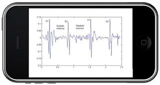 Fonokardiografi dalam telefon pintar